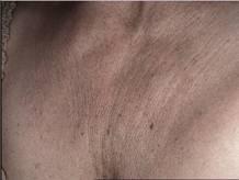 ultrasound_clip_image004